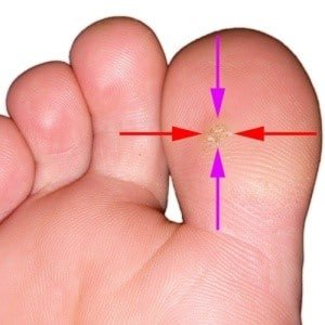 Wart on toe